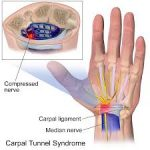 Hypnotherapy For Arthritis Pain – What Are Remedies For Arthritis Pain?