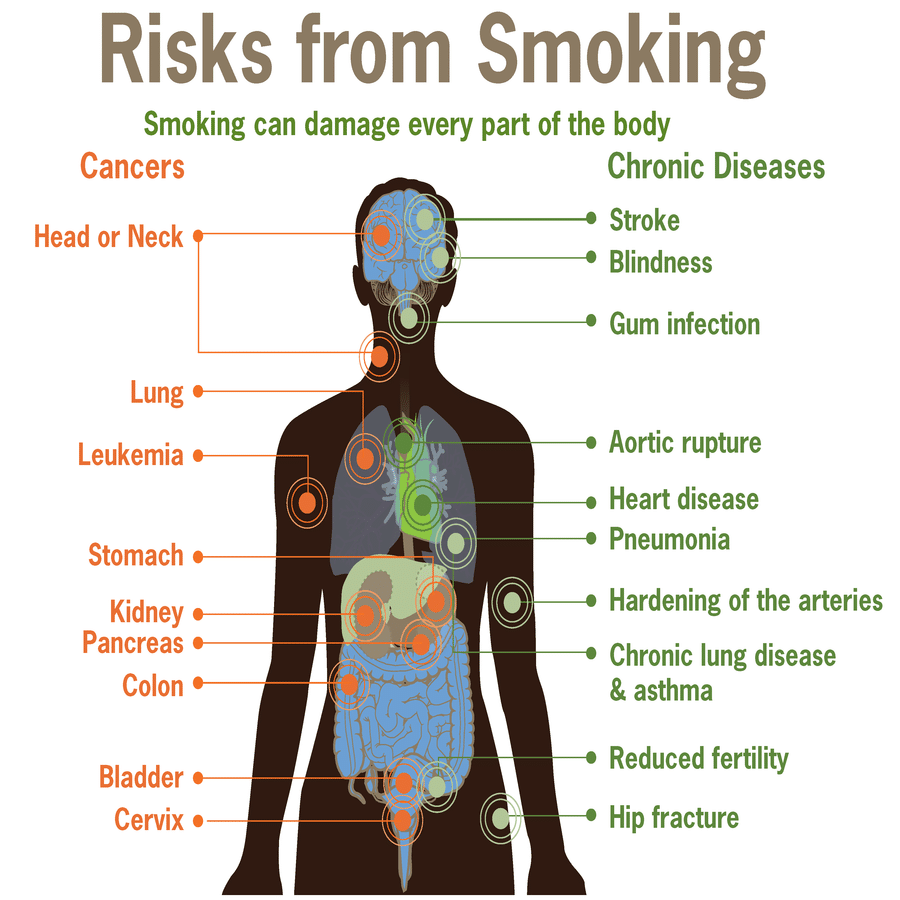 Risks_from_smoking-smoking_can_damage_every_part_of_the_body