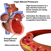 hypertension symptoms treatment