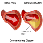 Using Clinical Hypnotherapy To Combat Coronary Heart Disease Associated With Smoking