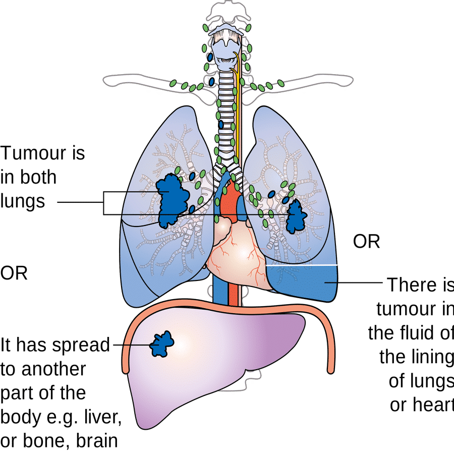 A Look At Smoking Effects On The Lungs | A Hypnotherapy Perspective