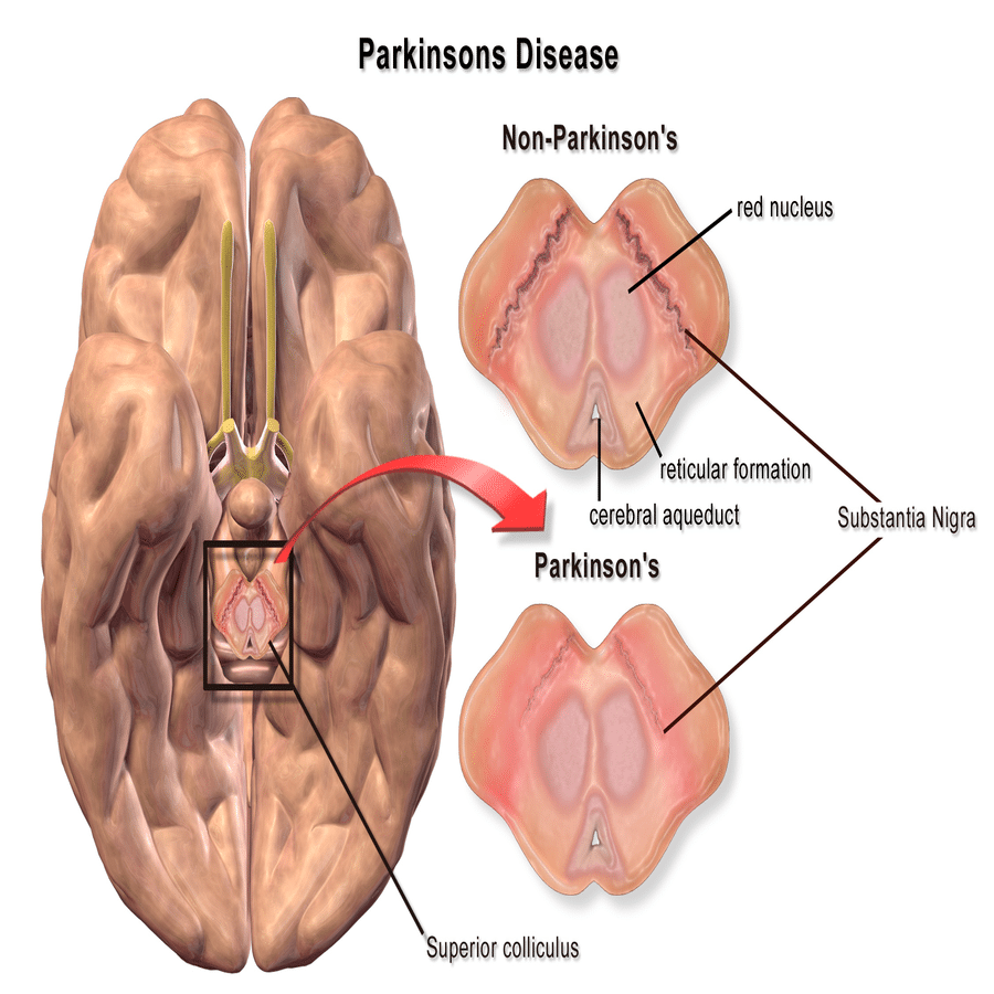 natural treatment for Parkinson's disease