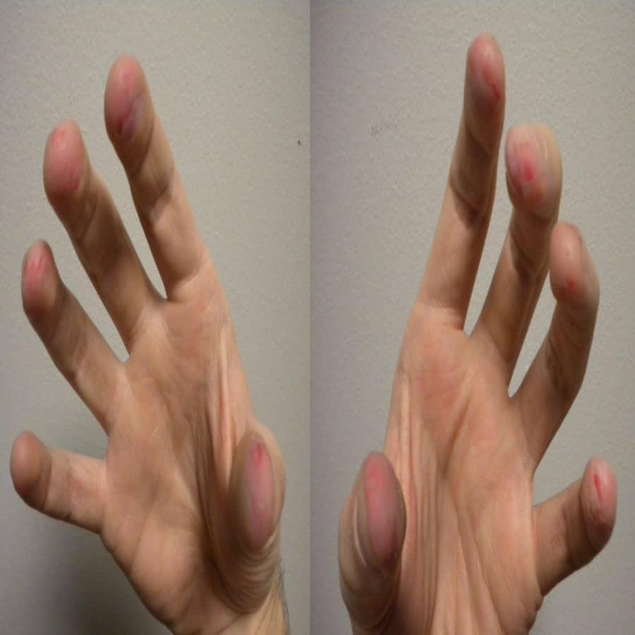 treatment dermatologic disorders