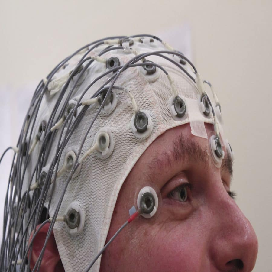 self hypnosis epilepsy