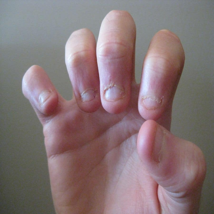 how to stop nail biting in adults