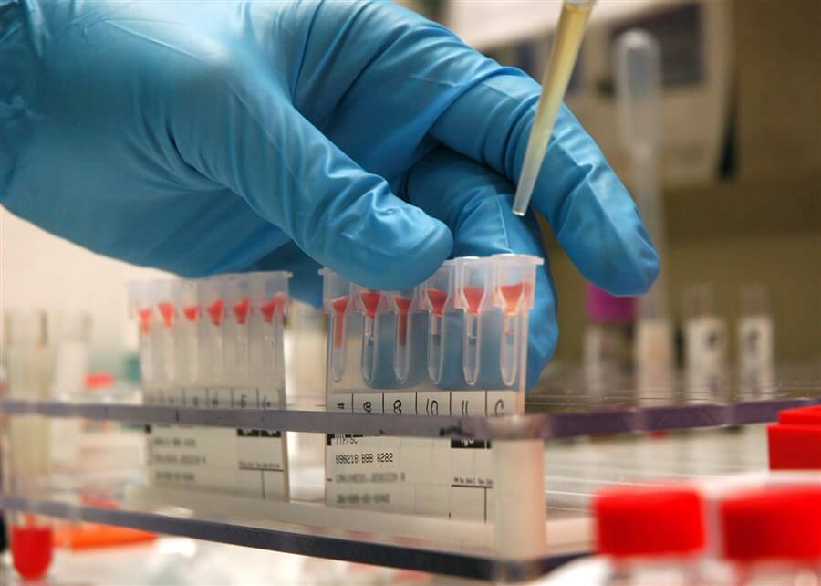 hemophilia-genetics