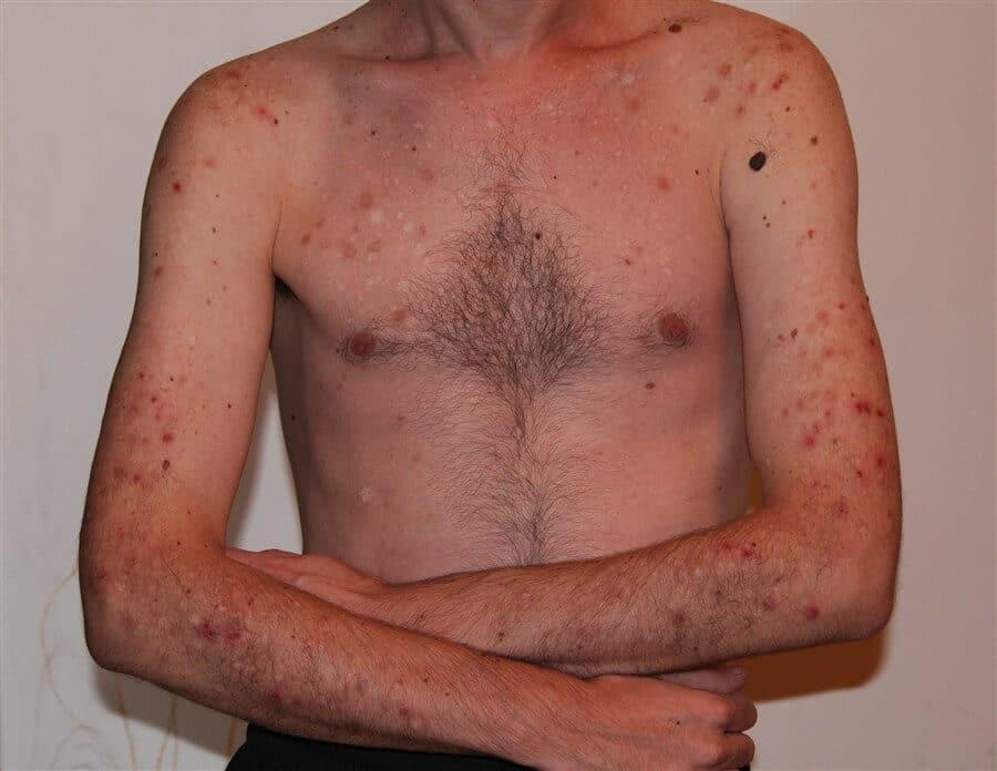 hypochondriasis disorder