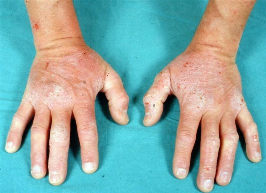 seborrheic dermatitis treatments