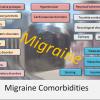 migraine relief treatment