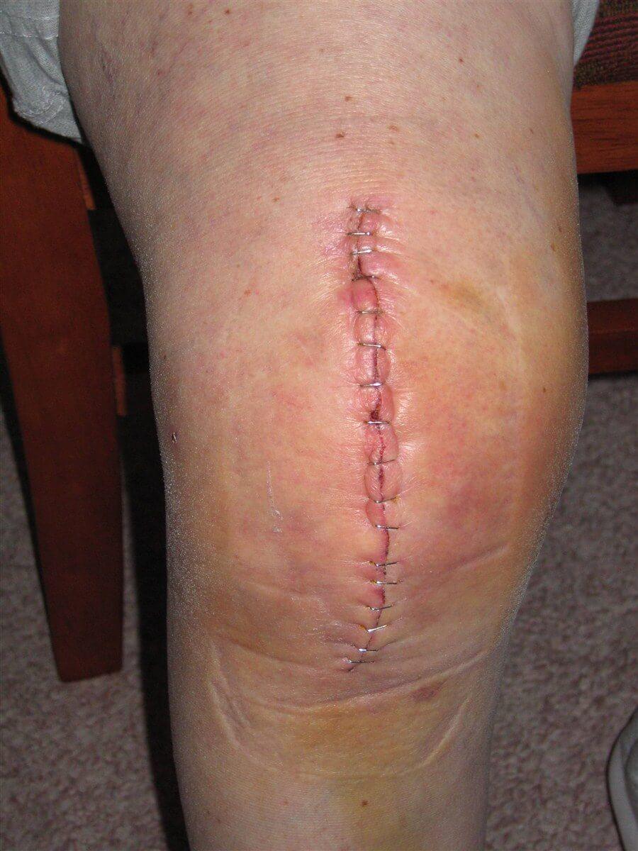 wound healing after surgery